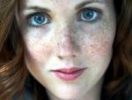 9 Ways to fade dark spots