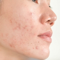 Hormonal Acne and How It is Treated