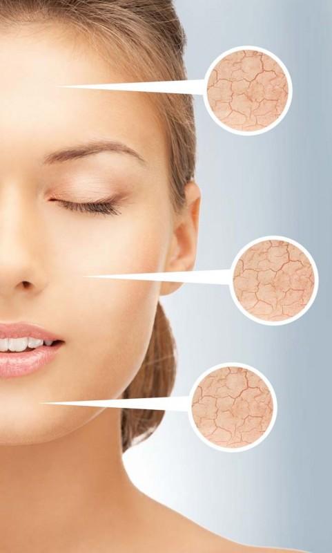Useful Tips For Wrinkle Free Skin
