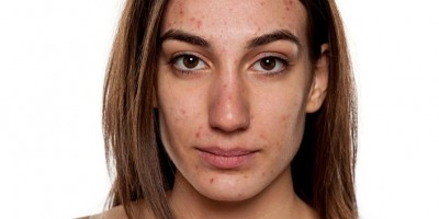 Signs to point fact or hormonal acne